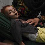 کودکان افغانستان از گرسنگی میمیرند