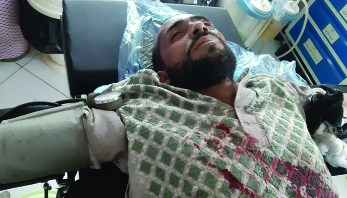 طالبان مسیرهای منتهی به ولسوالی تیوره را ماینگذاری کردهاند و این فرد بر اثر انفجار ماین در تیوره جان باخت. عکس: ارسالی به اطلاعات روز